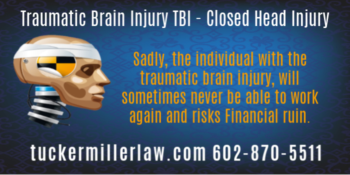 Traumatic Brain Injuries Victims May Never Return to The Work Force Picture