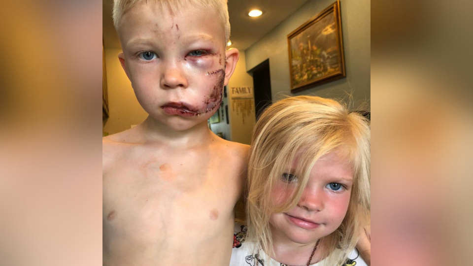Picture of 6 Year Old Boy Who Saved His Sister From Deadly Dog Bite